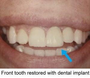 Dental Implants - Round Rock Periodontics